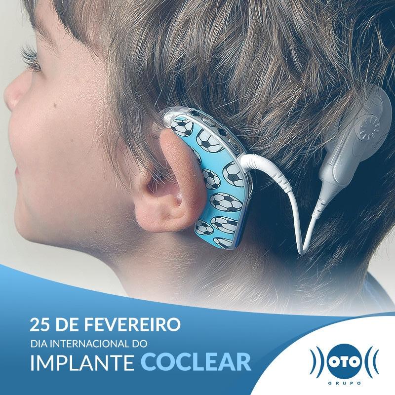 25 DE FEVEREIRO: DIA DO IMPLANTE COCLEAR